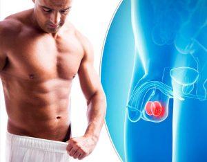 De ce dor testiculele: cauze surprinzatoare pentru durerea la testicule