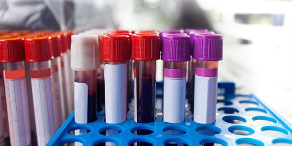 Enzime hepatice crescute: simptome, cauze si tratament