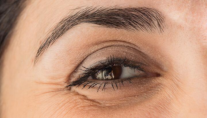 Riduri in jurul ochilor: Cauze si remedii naturiste