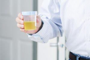 Celule epiteliale in urina: Tipuri, cauze si remedii naturiste