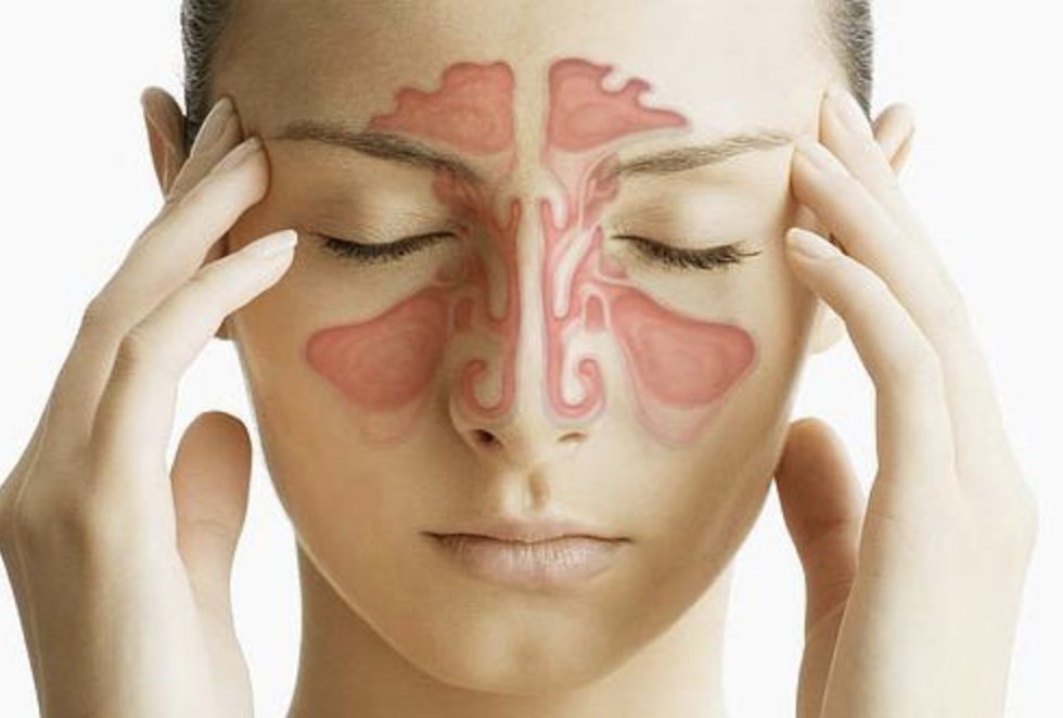 Dureri de cap sinusale (Rinosinuzita): Simptome, cauze, riscuri, diagnostic si tratament