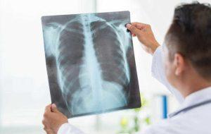 Pneumonia este contagioasa? Cauze, simptome si transmitere