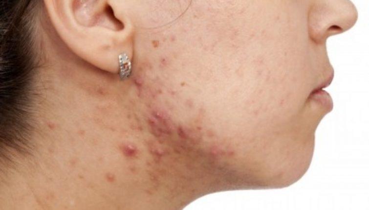 Sindromul ovarelor polichistice: Cauze, simptome si tratament