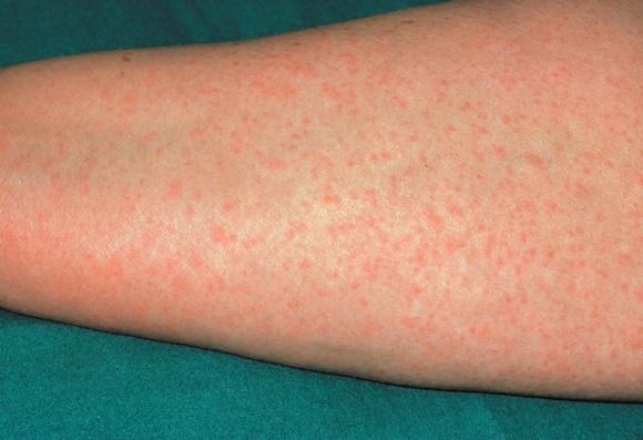 Alergie la penicilina: simptome, cauze, riscuri, diagnostic si tratament