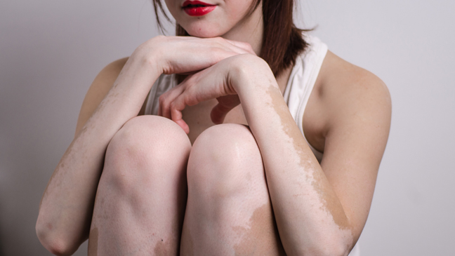 Vitiligo: tipuri, simptome, cauze, riscuri, complicatii, diagnostic si tratament