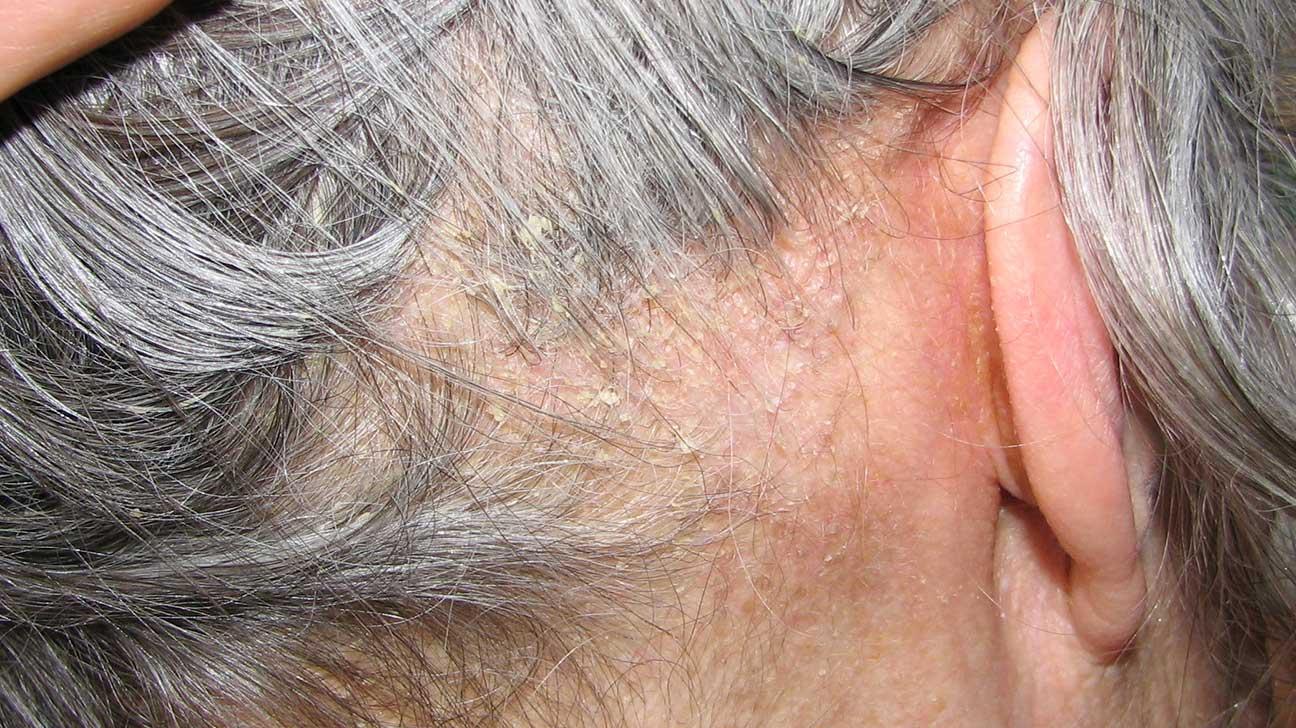 Dermatita seboreica: simptome, cauze, riscuri, diagnostic, tratament si prevenire