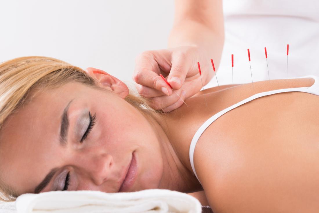 Fibromialgia: Cauze, puncte de declansare, tratament si diagnostic