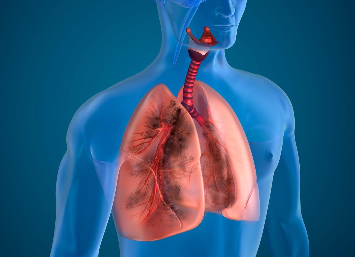 Fibroza chistica: simptome, cauze, riscuri, complicatii, diagnostic, tratament, prevenire si perspective