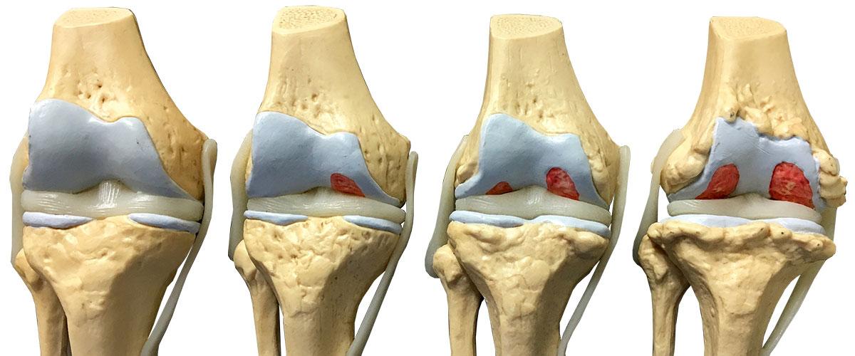 lichidul se acumulează în tratamentul articulației durere severă după o injecție în articulația genunchiului