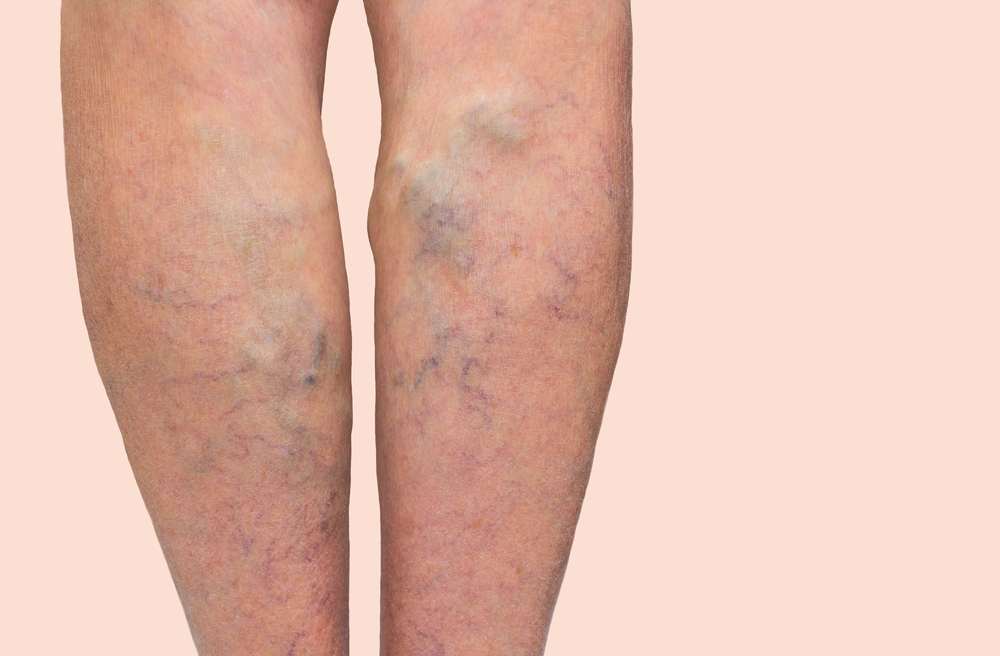 Tromboza venoasa profunda (cheaguri de sange in picior): simptome, cauze, factori de risc, diagnostic si tratament