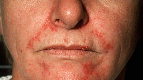 Dermatita seboreica: Simptome, cauze, factori de risc, diagnostic si tratament