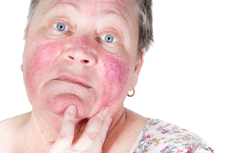 Rozaceea: simptome, cauze, factori de risc, diagnostic si tratament
