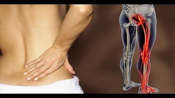 Ce inseamna sciatica? Cauze, simptome, diagnostic si tratament