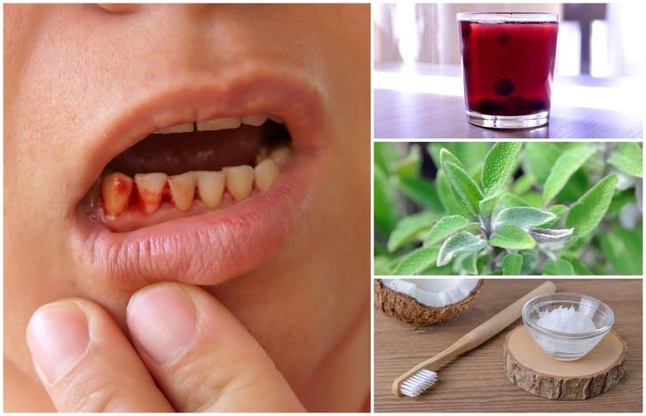 Cum sa scapi de gingivita: cauze, simptome si tratament