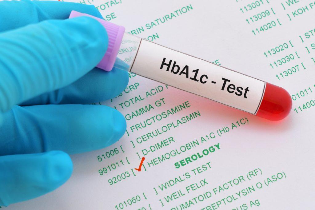 test hba1c
