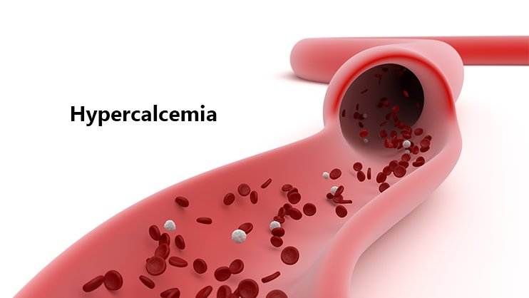 Nivel crescut de calciu din sange (Hipercalcemia): Ce inseamna, simptome si tratament