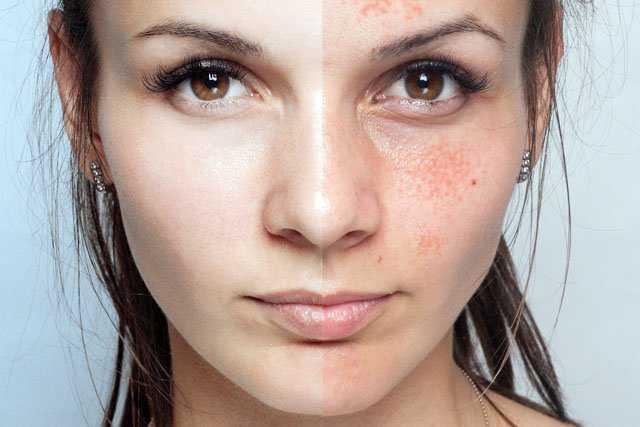 Cum se utilizeaza bicarbonatul de sodiu pentru albirea pielii