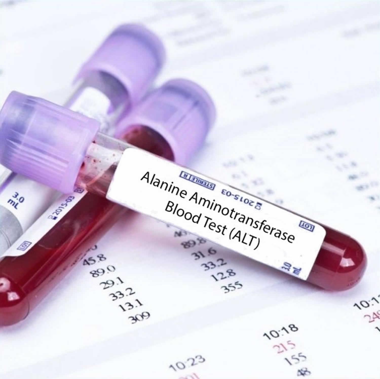 Testul de sange ALT (Alanin aminotransferaza): Ce inseamna, cum se efectueaza si interpretare rezultate