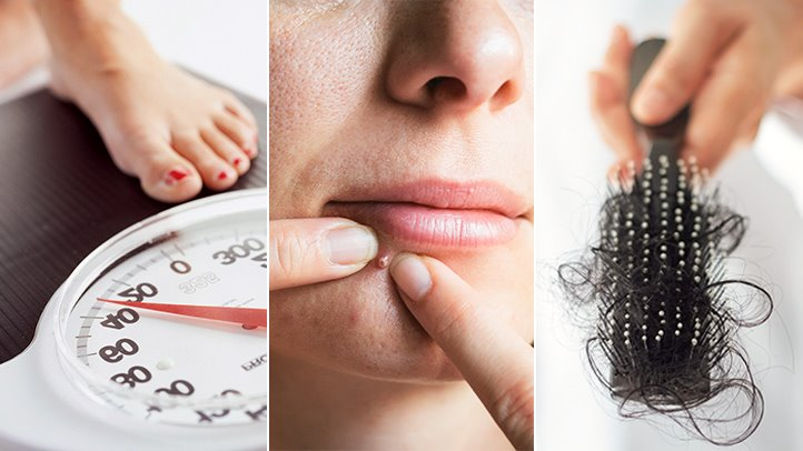 Sindromul ovarelor polichistice: Ce inseamna, cauze, simptome si tratamente