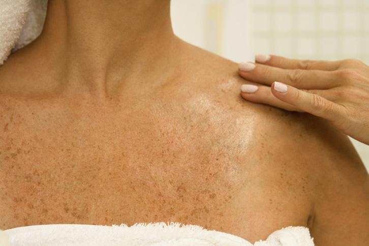 Cum sa scapi de petele maronii de pe piele: Cele mai bune remedii naturiste