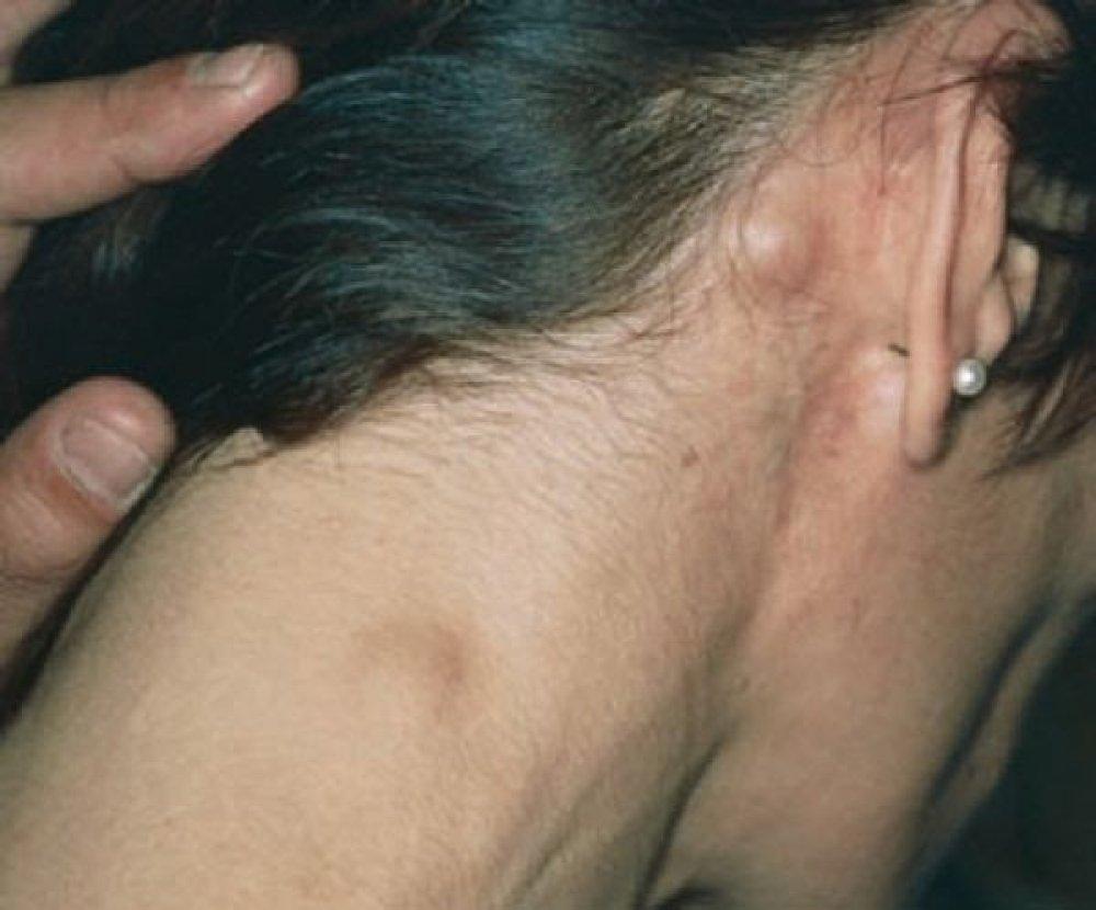 pierderea în greutate din cauza limfomului)