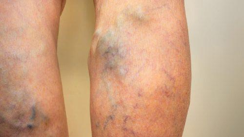 cheaguri de sange in picior