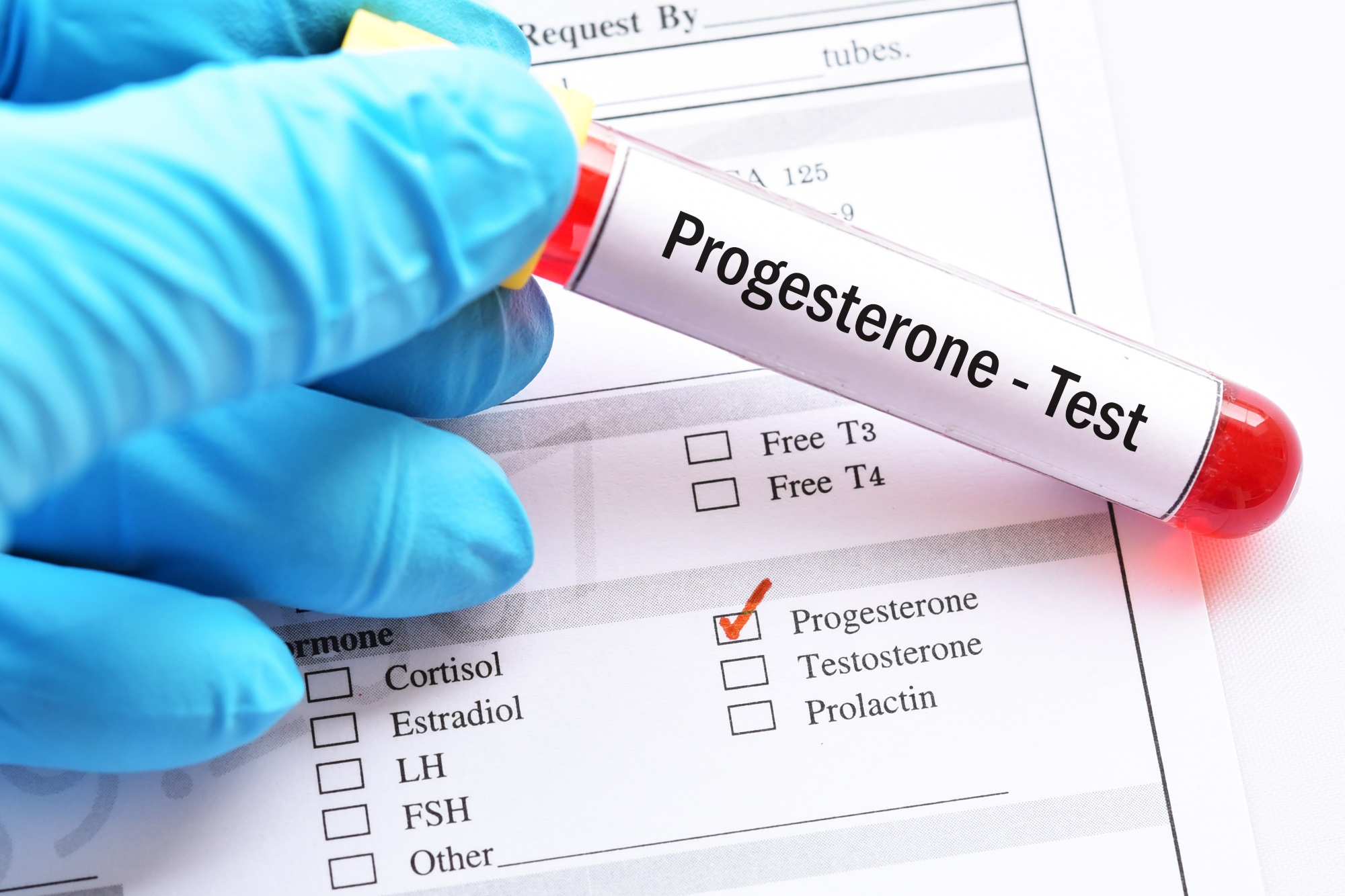 pot provoca progesteron scăzut pierderea în greutate rugăciunea de a scăpa în jos
